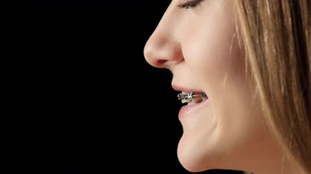 braces on teeth : Girl in profile with braces laughs. Black Stock Footage