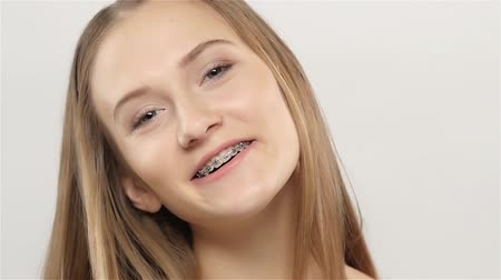 braces on teeth : Girl shows her smile braces. White. Slow motion