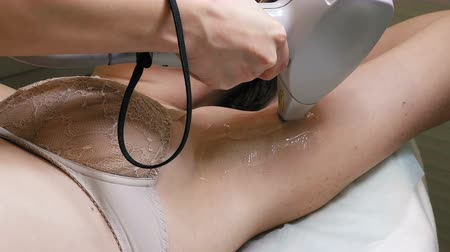 radiation therapy : Woman gets laser hair removal treatment underarm. Modern permanent epilation procedure. 4K UHD video footage. Stock Footage