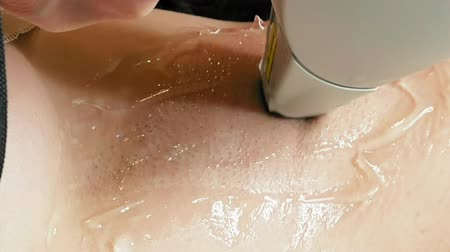 silme : Woman gets laser hair removal treatment underarm. Modern permanent epilation procedure. Stok Video