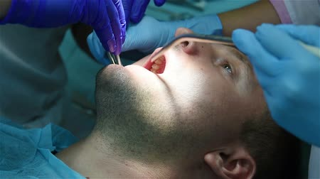 graft : implantation concept, dentist sews gum Stock Footage