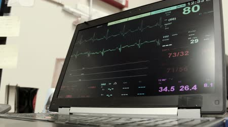 vital signs : Vitals signs on a laptop in the monitoring station of a medical clinic.