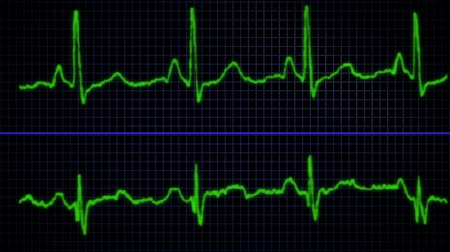 rendes : An electrocardiogram displays the electrical activity of a strong regular heartbeat. Stock mozgókép
