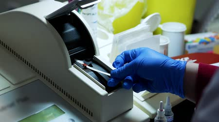 clínico : A nurse puts a blood sample into a blood analyzer. Blood for research on a special stick Stock Footage