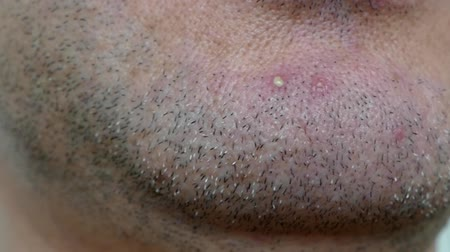 inflamed : one pimples on human face, one pimples on male face, an inflamed acne on a male face.
