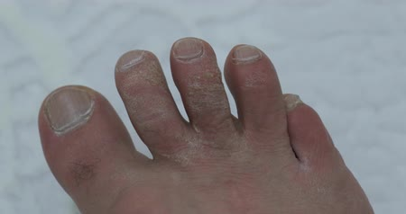 formado : fungus and calluses formed on the toes, a neglected human foot Vídeos