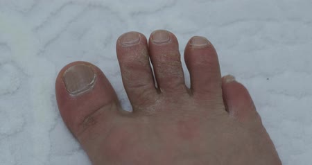 ayak parmakları : fungus and calluses formed on the toes, a neglected human foot Stok Video