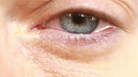 macula : red eye with tears - close-up Stock Footage