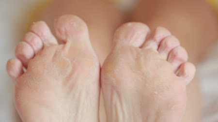 ayak parmakları : female feet with skin peeling off. foot scrub after the procedure