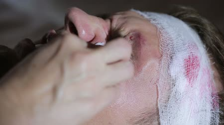 bruising : man with head injuries lying on the bed. bandaged head. bruise on his face. Stock Footage