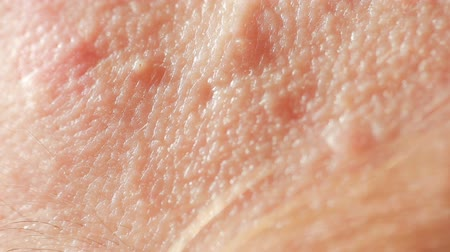 pus : spherical cystic acne on the skin. Close-up. The concept of dermatology Stock Footage