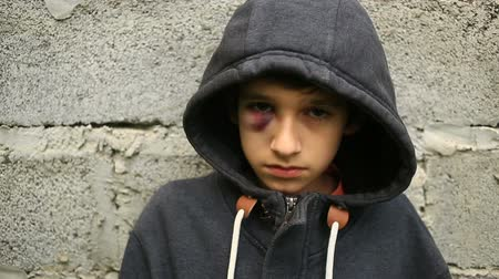 pohárek : The boy is a teenager with a hematoma and a bruised eye that looks into the camera.