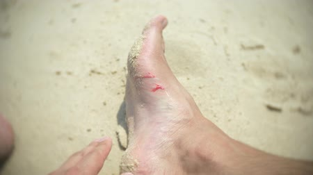 ferida : human feet, cut about corals, while swimming in the sea. 4, slow motion
