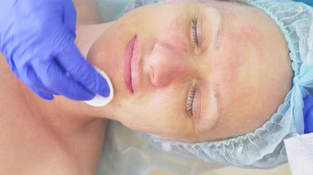 pus : procedure for cleaning the face in the doctors office of a dermatologist. 4k, close-up, slow-motion . Squeezing the infected pustulous acne to inoculation