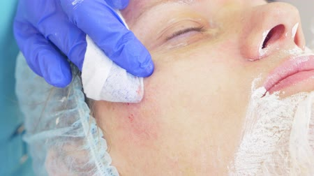 lesion : procedure for cleaning the face in the doctors office of a dermatologist. 4k, close-up, slow-motion . Squeezing the infected pustulous acne to inoculation