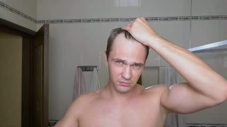 não barbeado : Young attractive man inspects a receding hairline in the bathroom. Baldness Vídeos