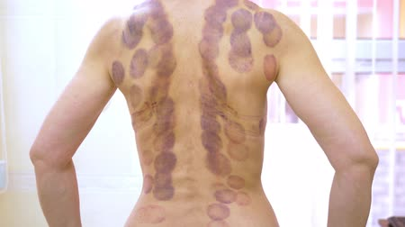 emme : Round bruises. Traces on the back of a young woman after the procedure of vacuum cupping massage. Round bruises