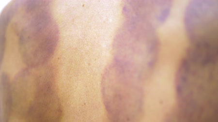 vácuo : Round bruises. Traces on the back of a young woman after the procedure of vacuum cupping massage. Round bruises