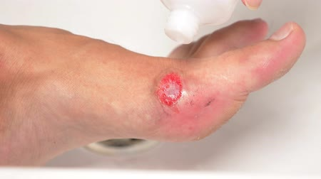fájó : close-up. treatment of wounds with hydrogen peroxide. first aid for abrasions.