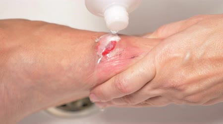 sanitize : close-up. treatment of wounds with hydrogen peroxide. first aid for abrasions.