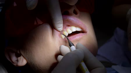dor de dente : closeup. the woman visit the dentist. hands of dentist with gloves on