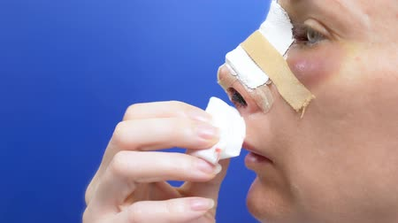 nose reshaping : Closeup of a female face on the second day after rhinoplasty. bandage on the nose, swelling and bruising on the face Stock Footage