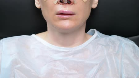 bruising : Closeup of a female face on the second day after rhinoplasty. bandage on the nose, swelling and bruising on the face Stock Footage