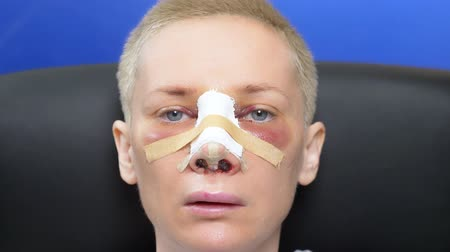 bruising : Closeup of a female face on the second day after rhinoplasty. bandage Stock Footage
