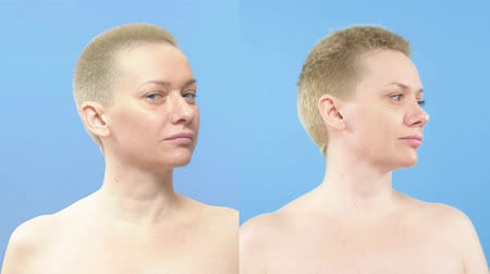 contornos : portrait of a woman. comparison before and after rhinoplasty