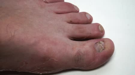 lesion : Fungus infection nails of persons foot