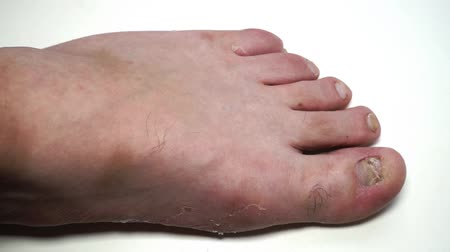 the inflammation : Fungus infection nails of persons foot