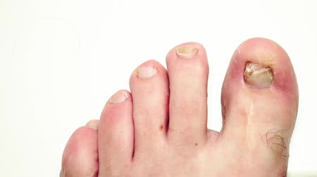lesion : Fungus infection nails of a persons foot close-up