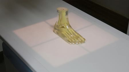X-ray ones foot