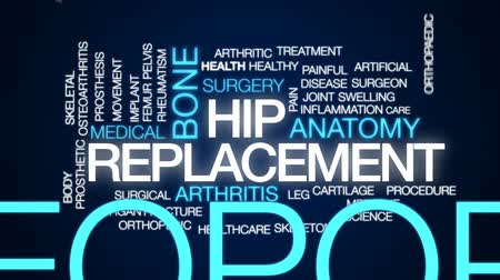 osteoarthritis : Hip replacement animated word cloud, text design animation. Stock Footage