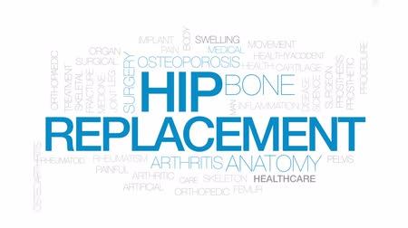 скелетный : Hip replacement animated word cloud, text design animation. Kinetic typography. Стоковые видеозаписи