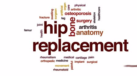 artrite : Hip replacement animated word cloud, text design animation. Vídeos