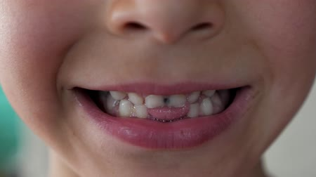 ağız : portrait of 6 year old boy with bad rotten teeth. Stok Video