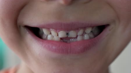 sorrisos : close up little child show broken teeth boy with a Teeth broken and caries. Stock Footage
