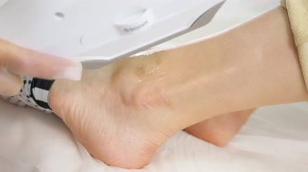 анти : professional hands do laser anti-pigmentation procedure on woman ankle on medical clinic table extreme close view