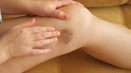 batido : Woman examines and feels the bruise on her leg, closeup Stock Footage