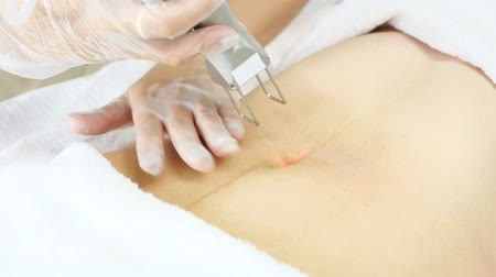 professional beauty clinic worker makes laser hair removal on patient belly with special equipment extreme close-up