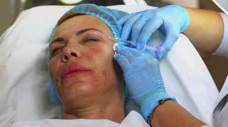 yaşlanma : Cosmetic treatment with injection in a clinic Stok Video