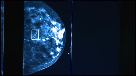 piersi : Medical Imaging of Breast Wideo