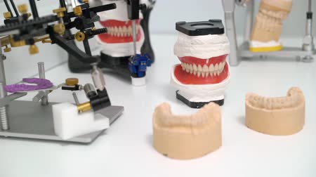 ortodontik : Jaw tooth model in dental clinic
