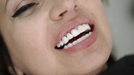 zbělit : Patient in dental clinic on chair smiling with veneers