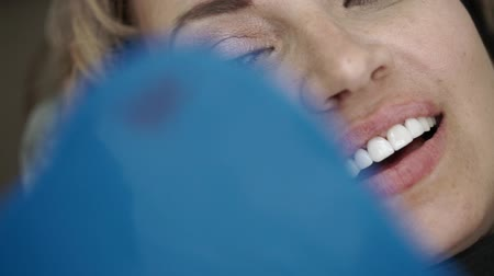folheado : Patient in dental clinic on chair smiling with veneers