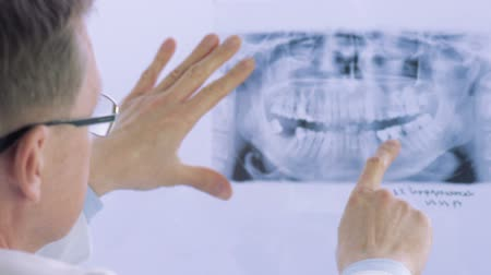 рентгенологическое : Closeup of dentist looking at dental x-ray plate. Dental x-ray plate leaning on the light table while the dentist examines the dental arch. Стоковые видеозаписи