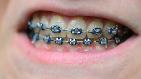 brackets : teeth with brackets