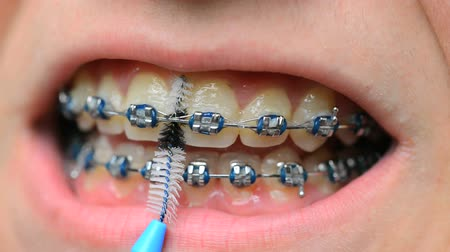 braces on teeth : teeth cleaning with braces