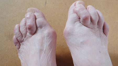 Valgus Deformity of Female Leg Due (Hallux Valgus) and Weakness of Ligaments.